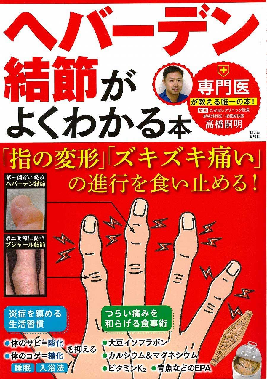 ヘバーデン結節がよくわかる本 「指の変形」「ズキズキ痛い」の進行を食い止める!